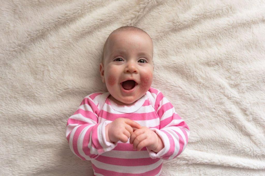 How to Treat Baby Eczema Naturally